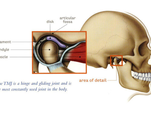 Myofascial Release for Temporomandibular Joint (TMJ) Syndrome