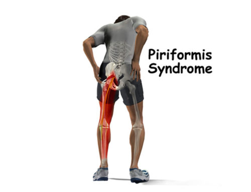 Piriformis Syndrome: What is it?